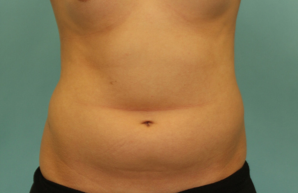 LIPOSUCTION-1-BEFORE