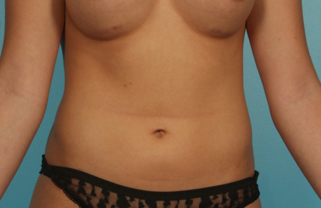 LIPOSUCTION-1-AFTER