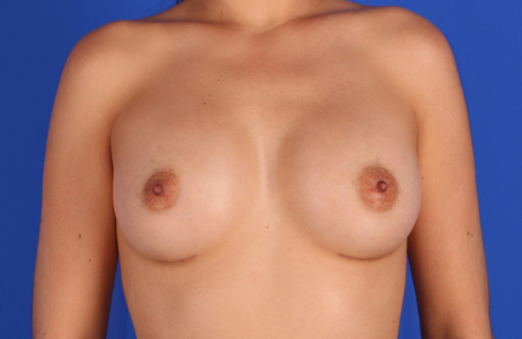 BREAST-AUGMENTATION-1-AFTER