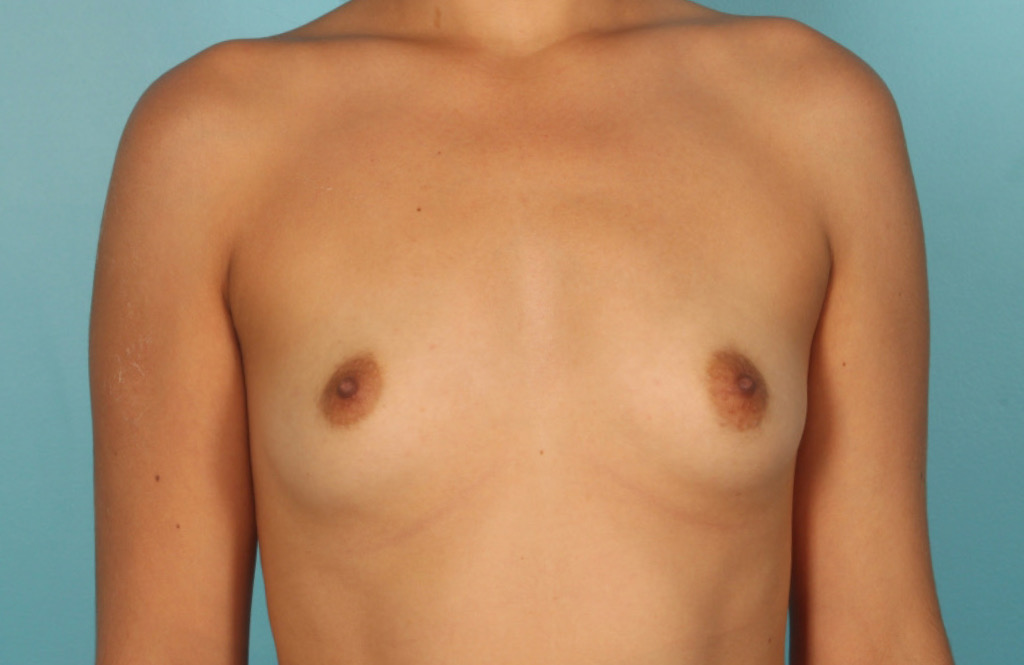 BREAST-AUGMENTATION-1-BEFORE